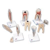 Mô Hình Giải Phẫu Răng
